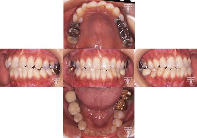 30代 女性 顎のずれによる顎関節症(かみ合わせ治療):初診時の正面観・側方観・かみ合わせの面の状態