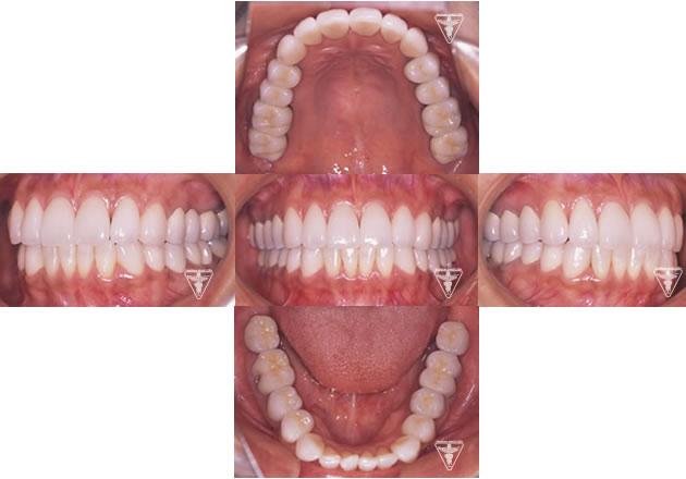 30代 女性 顎のずれによる顎関節症(かみ合わせ治療):顎のずれを改善し、上下のかみ合わせの関係を理想的にして筋肉や関節の緊張が取れ、穏やかな表情に変られました。