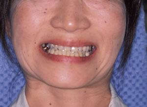 30代 女性 顎のずれによる顎関節症(かみ合わせ治療):治療前の写真