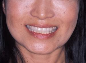 30代 女性 顎のずれによる顎関節症(かみ合わせ治療):治療後の写真