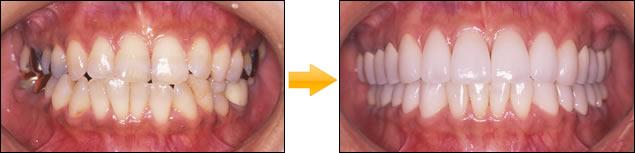 顎のずれによる顎関節症の症例写真