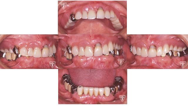 初診時に患者さんが使用していた入れ歯の写真