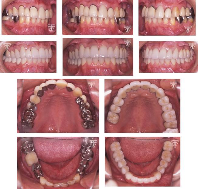 40代 男性 矯正 写真 前歯 矯正
