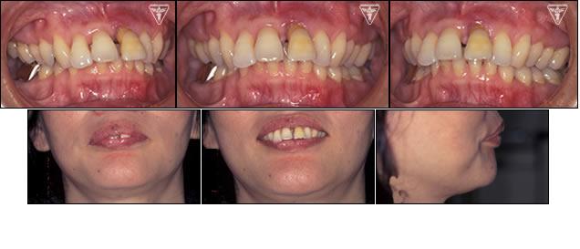 ⑬50代 女性:歯周疾患による上顎前突症(出っ歯)の症例(出っ歯 写真)
