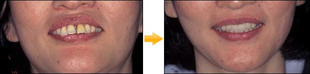 症例:⑨総義歯・総入れ歯 (印象・模型・排列・歯肉形成はすべてドクターの手により調整)