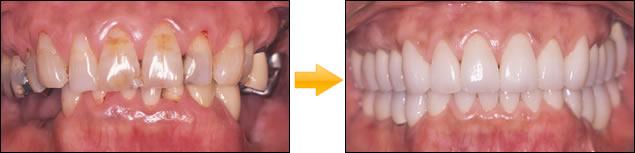 サイナスフロアエレベーション下顎・奥歯・両側欠損をインプラント 写真