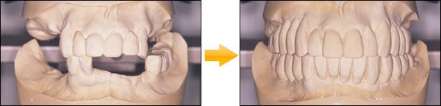 多数歯欠損のインプラント症例 写真