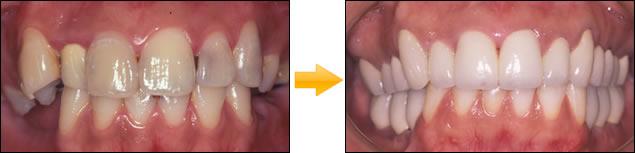CT診断により全顎的治療を行った症例 写真